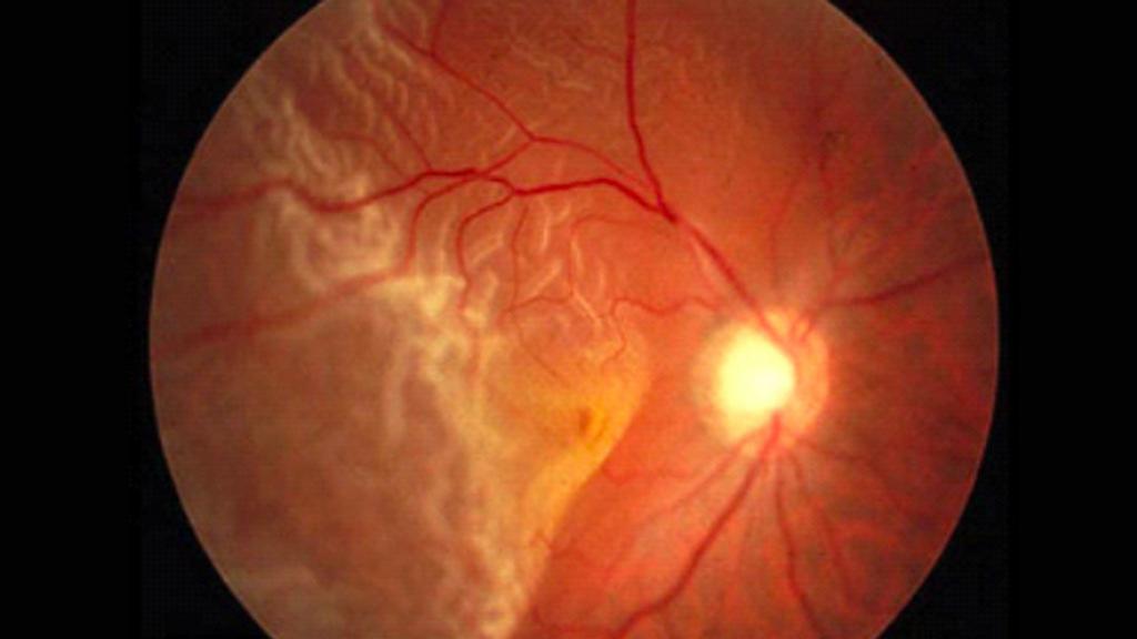 occhio con distacco retina