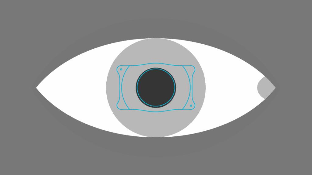 lenti ICL per miopia elevata