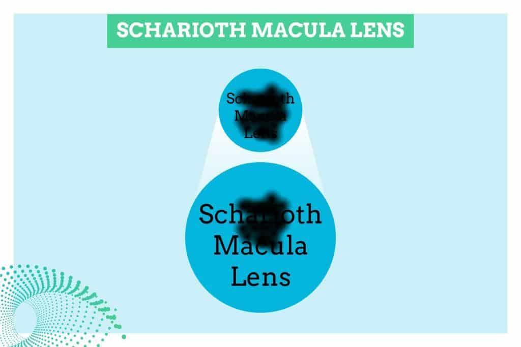 lente SL maculopatia