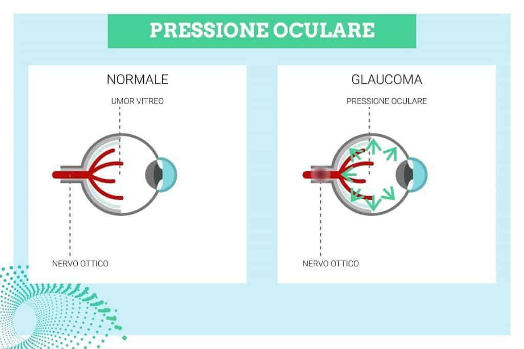 pressione oculare alta