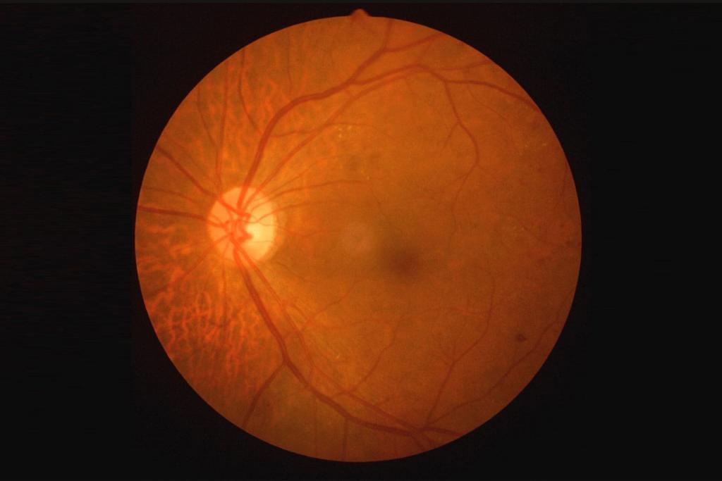 distaccamento retina sintomi