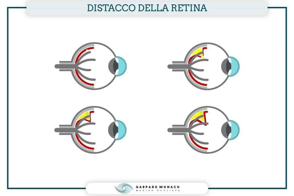 retina distacco