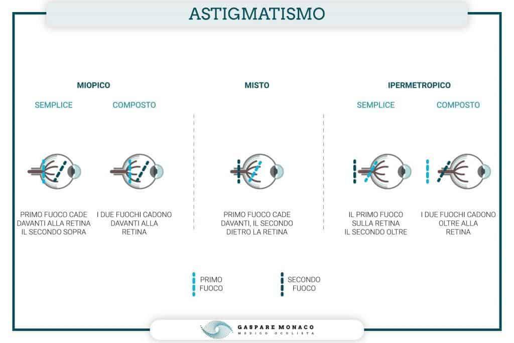 astigmatismo miopico