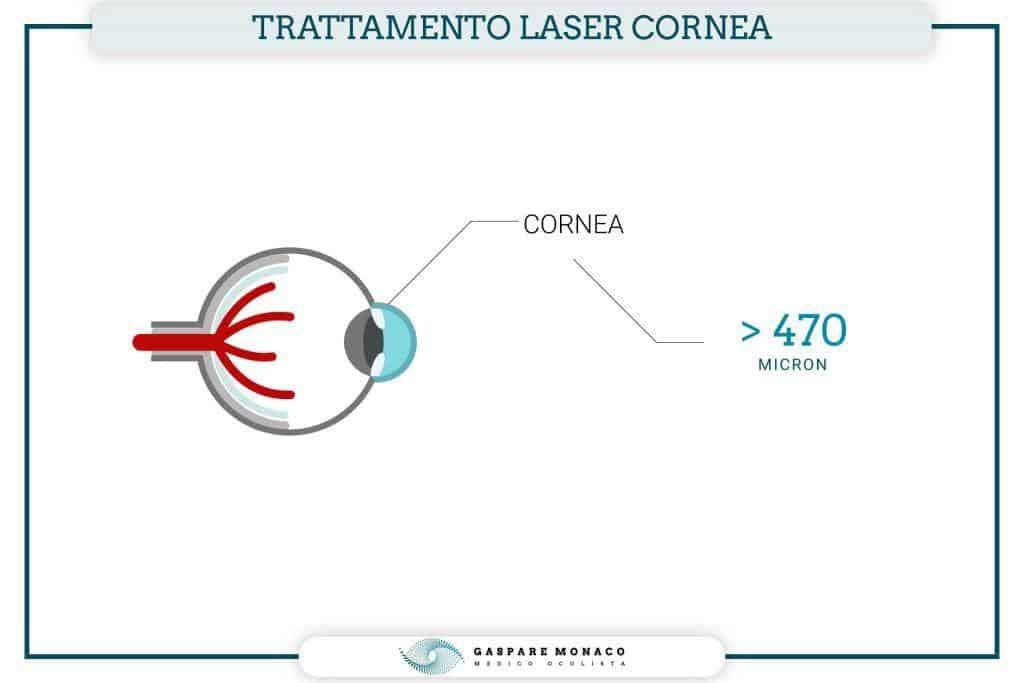 spessore minimo cornea per intervento laser