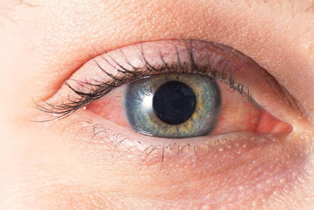 occhio secco sintomi
