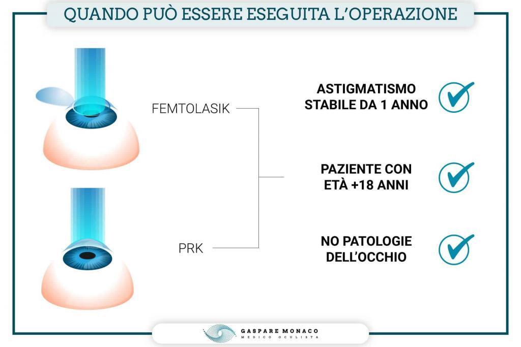 operazione astigmatismo