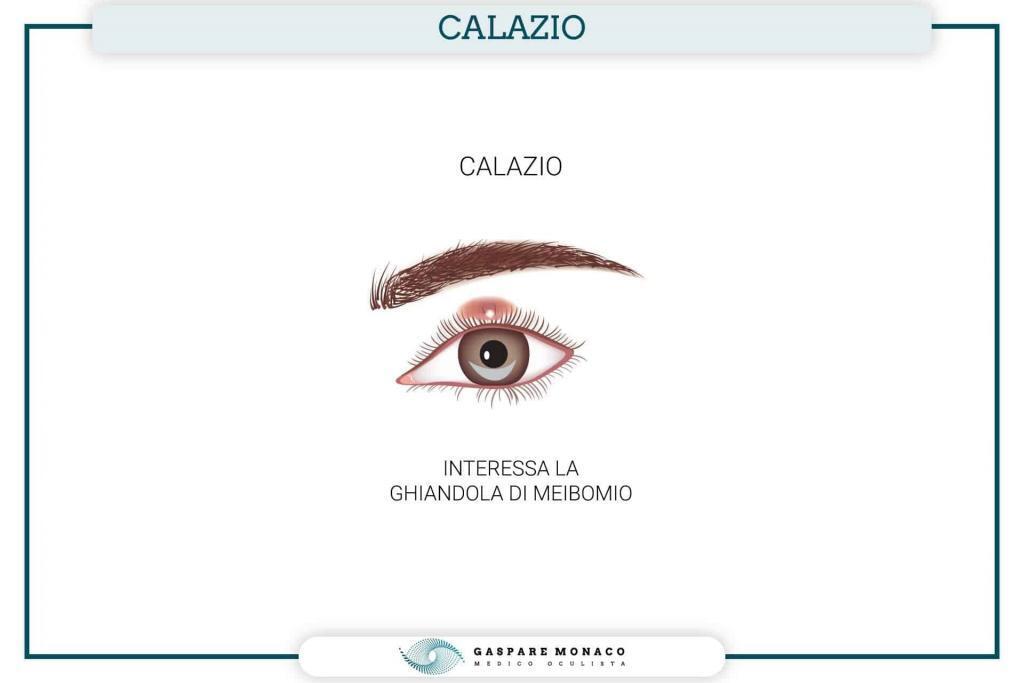 calazio