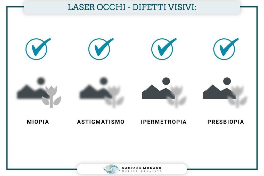 chirurgia corneale